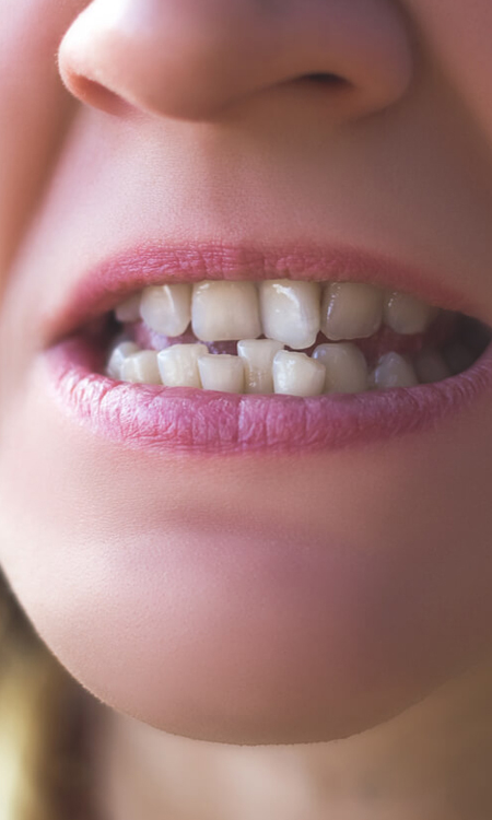 LIMITATIONS OF TOOTH RESHAPING
