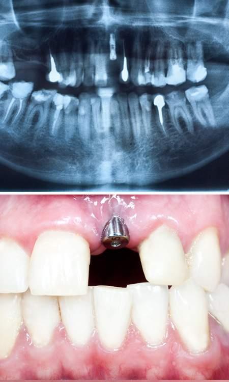 Single Dental Implant - FMS