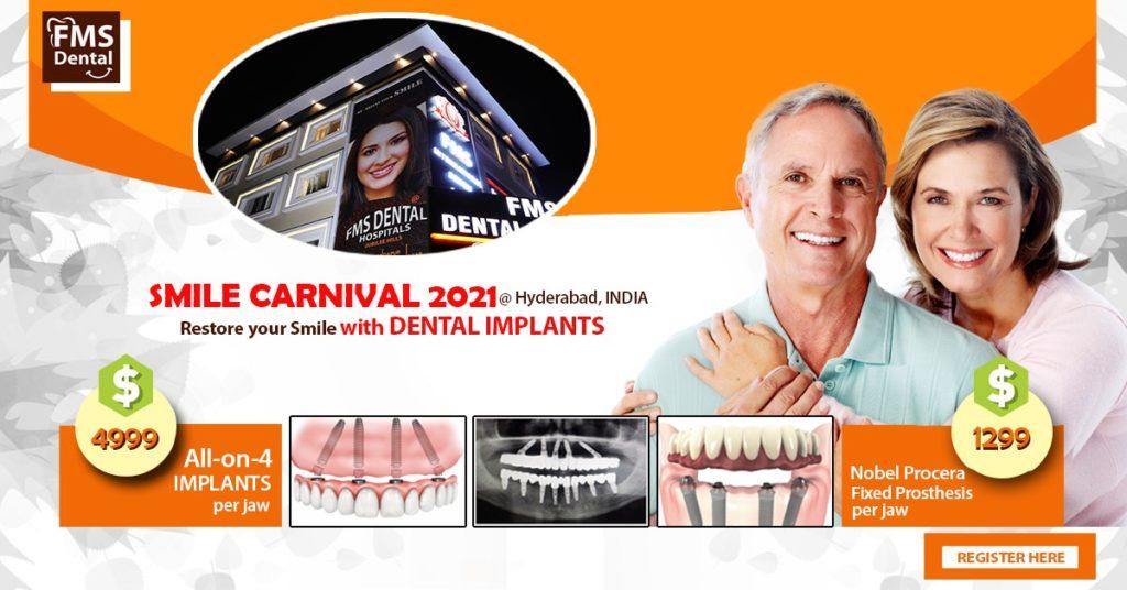 Dental-Implants-Smile-Carinival