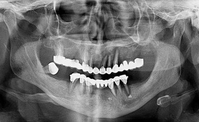 permanent-teeth-in-3-days