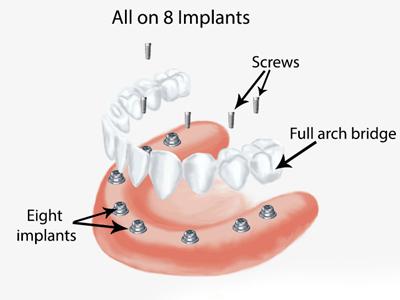 Implant 005