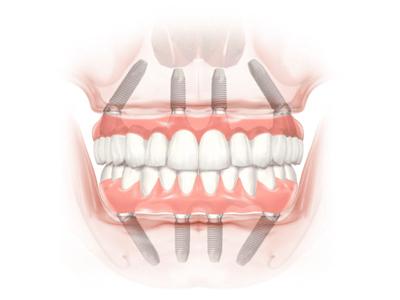 Implant 006