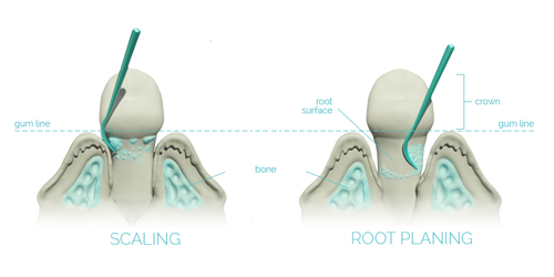 Scaling & root planing