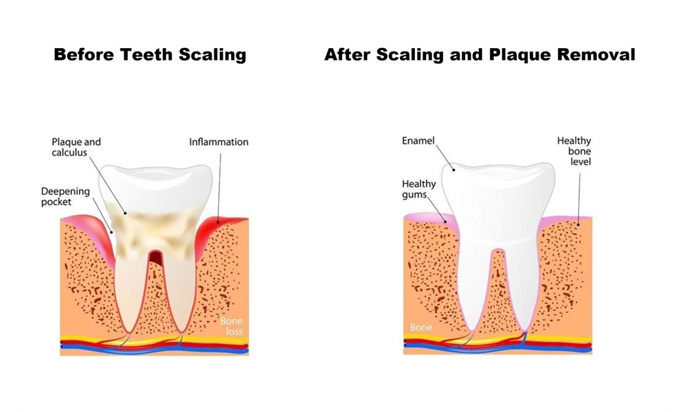 WHAT ARE THE BENEFITS OF TEETH SCALING AND ROOT PLANING