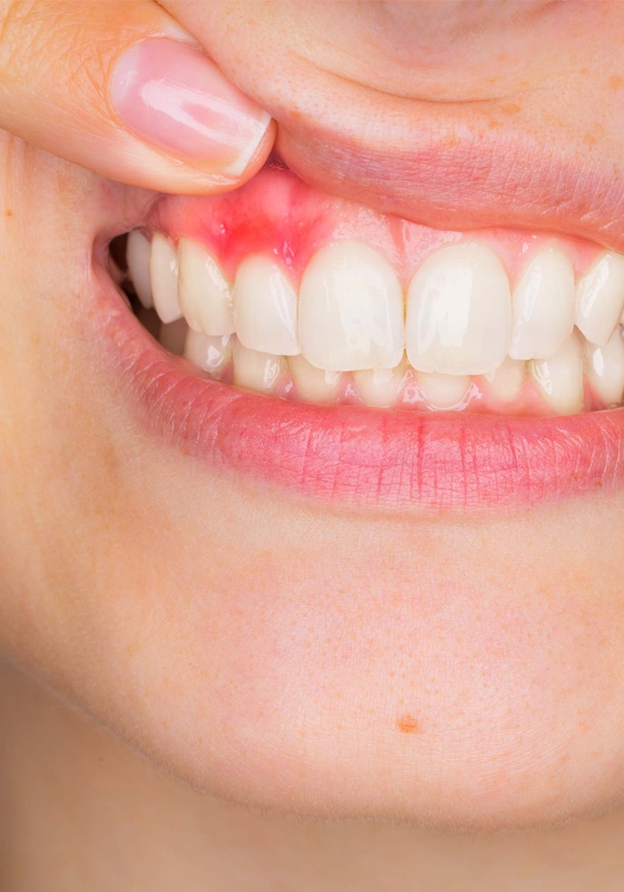 WILL SCALING BE ENOUGH TO REVERSE YOUR GUM DISEASE