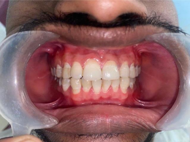 after Surgical depigmentation