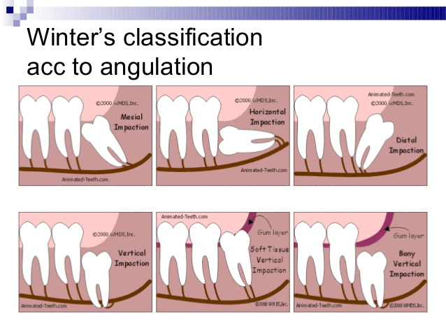 tooth needs