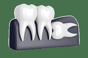 Wisdom teeth,