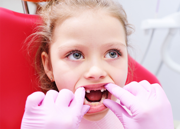 early-childhood-caries