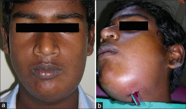 facial space infections