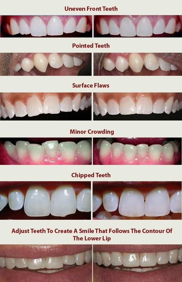 tooth-recountouring