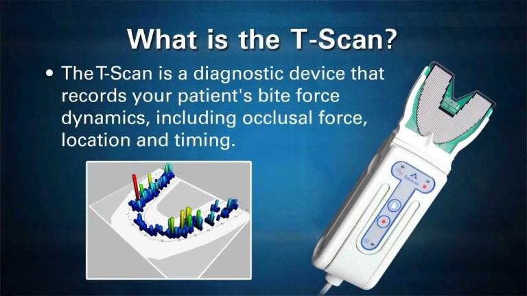 T-Scan - FMS DENTAL HOSPITAL