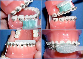 hygiene during orthodontic treatment