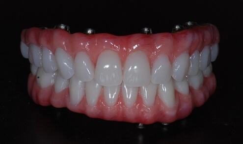 Hybrid-Denture