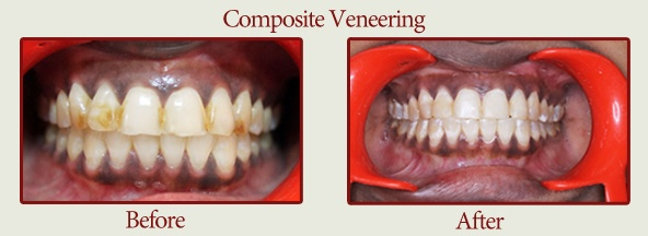 composite_vennering