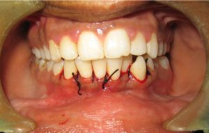 gingivectomy07