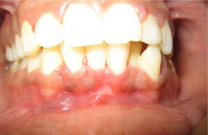 gingivectomy08