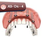 implantall4