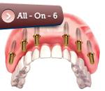 implantall6
