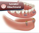 implantlocator
