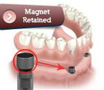implantmagnet