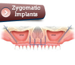 implantzygoma