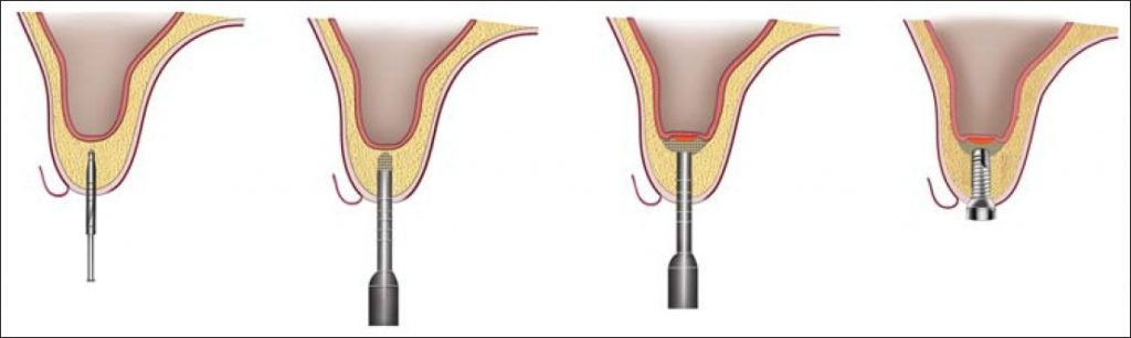 indirect-sinus-lift