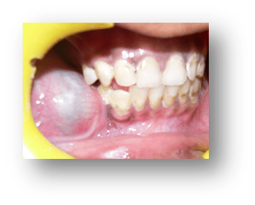 jaw-cysts