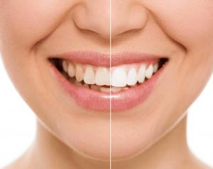 Tooth Whitening Treatment - FMS DENTAL HOSPITAL