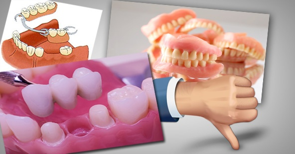 why dental implant?