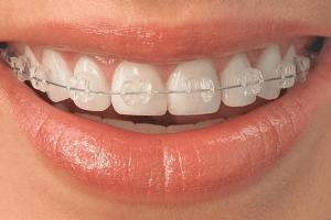 Ceramic braces FMS