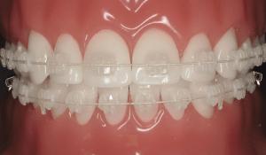 Ceramic braces FMS DENTAL