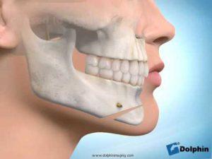 sliding genioplasty long face